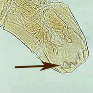 The hookworm's mouth - look at those teeth!